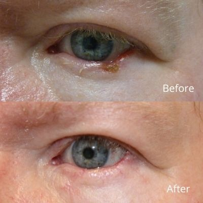 Lower Lid Reconstruction (Skin Cancer Removal)